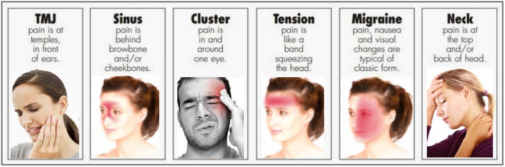 Headache on tension headache location chart